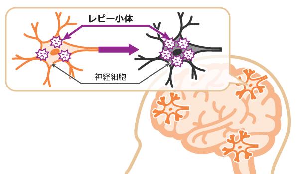 神経細胞とレビー小体のイメージ図