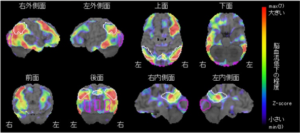 アイキャッチ:【広川先生のMCIコラム(第4回)】早く気づけば認知症にならない!?~実際にあった早期発見の事例③~
