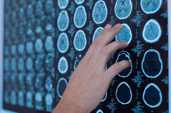 アイキャッチ:名古屋大学、健常者における脳の老化・萎縮様式を解明