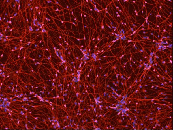 アイキャッチ:米ES社、患者iPS細胞由来の疾患モデル組織を販売開始