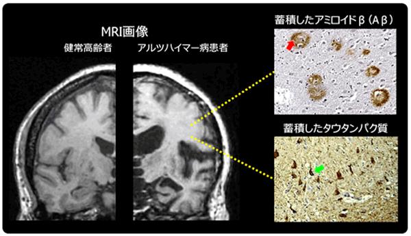 アイキャッチ:医療研究開発機構、アルツハイマー病における意欲低下の原因を解明