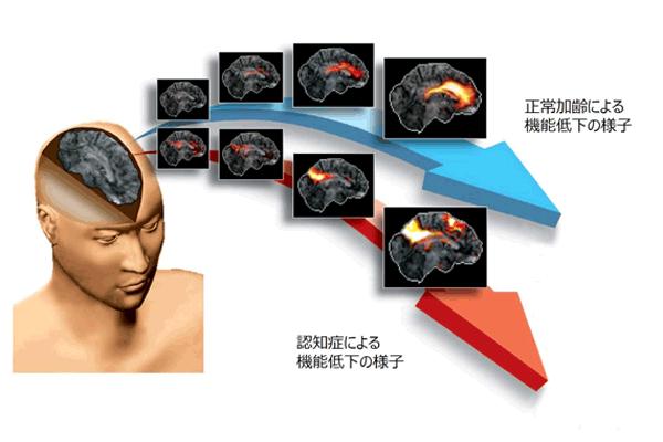 アイキャッチ:浜松ホトニクス、早期認知症診断支援システムの研究開発を加速